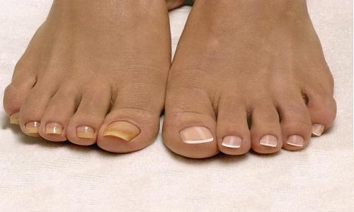 Обычные и нарощенные ногти