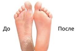 Сравнение стоп до и после использования педикюрных носочек
