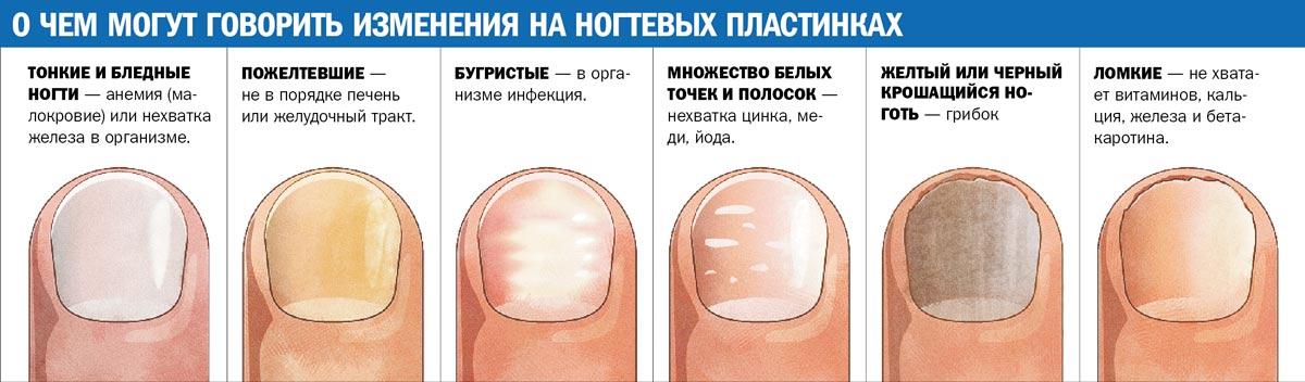 Фото грибка ногтя ноги