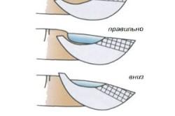 Правильное расположение формы на пальце