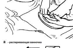 Стрижка ногтей на ногах