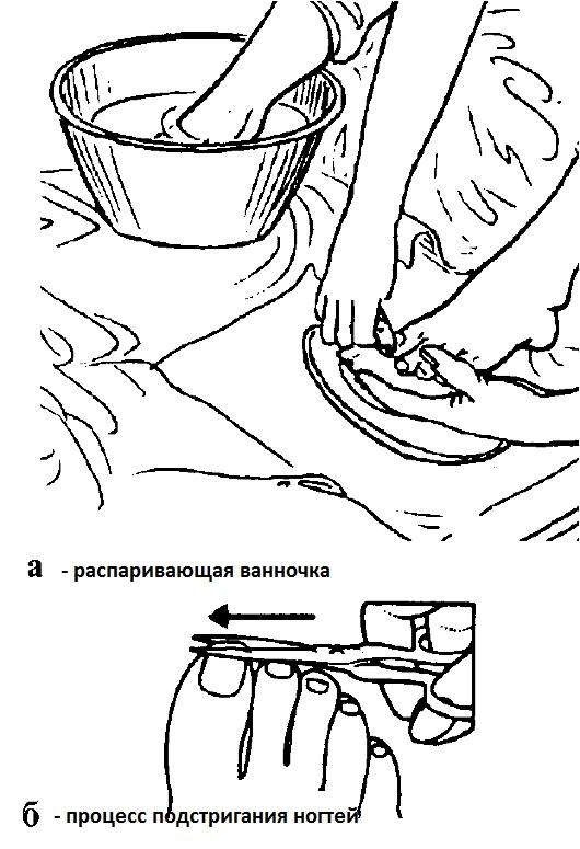Почему от грибка чешутся ноги