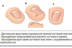 Виды врастания ногтей