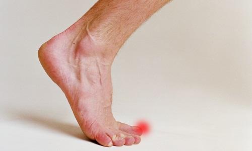 Дискомфорт при вросшем ногте