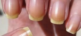 Почему желтеют ногти от лака?