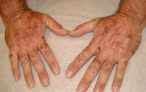 Болезнь порфирия