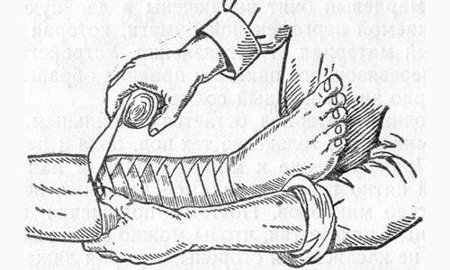 Бинтование ног перед операцией