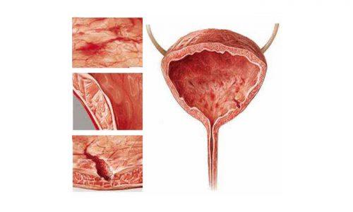 По степени поражения слизистой оболочки органа выделяют шеечный цистит (патпроцесс охватывает только шейку мочевого пузыря)