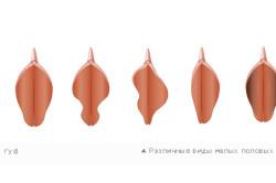 Формы малых половых губ