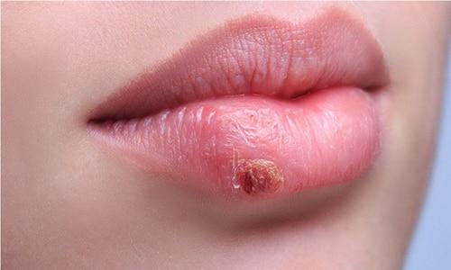 1 тип - вирус простого герпеса: поражаются подбородок, губы, нос, щеки, возможны высыпания на слизистой рта