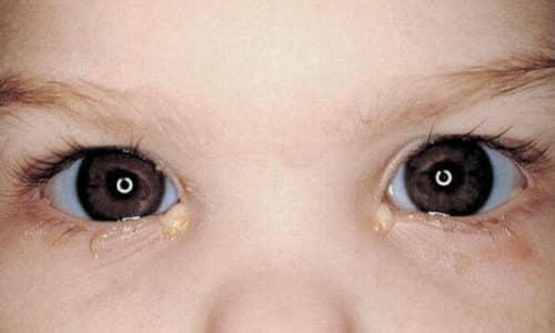 Герпетический конъюнктивит, возникающий в том случае, если инфекция попадает в область глаз