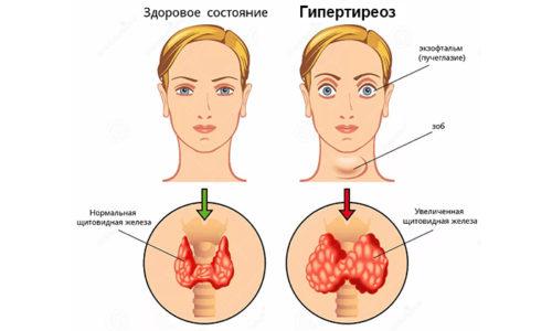 Гипертиреоз - это заболевание щитовидной железы, которое характеризуется повышенной выработкой гормонов