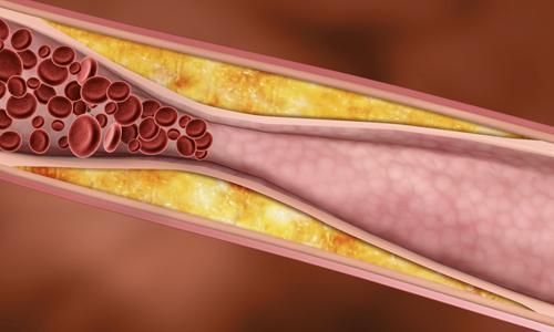 Холестериновые бляшки в крови