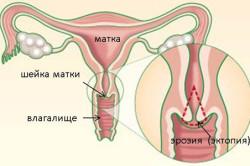 Эрозия шейки матки - причина желтоватых выделений