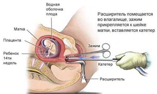 Процедура выскабливания