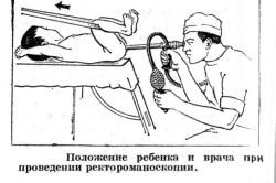 Проведение ректороманоскопии ребенку