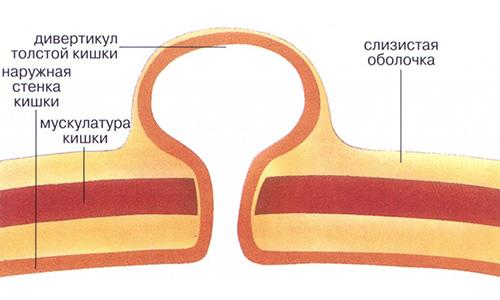 Схема дивертикула кишки