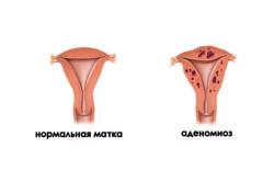 Внутренний эндометриоз тела матки