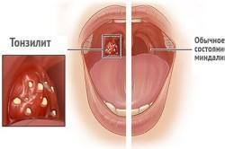 Миндалины в норме и при тонзиллите
