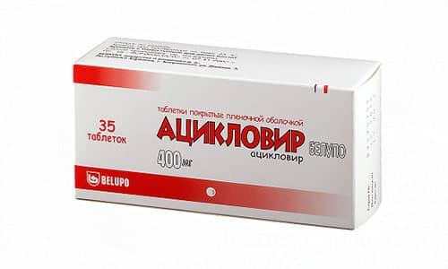 В таблетках Ацикловир назначается во время первичного проявления герпеса или рецидива