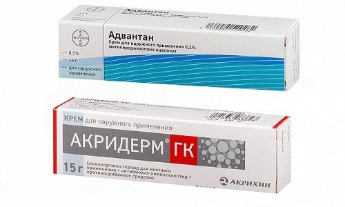 Для терапии различных кожных патологий могут прописать препараты Адвантан или Акридерм