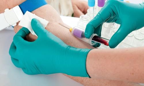 Забор крови для анализа ИФА