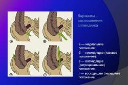 Варианты расположения аппендикса