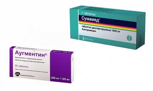 Аугментин или Сумамед - антибиотики, используются для лечения инфекционных патологий бактериальной природы