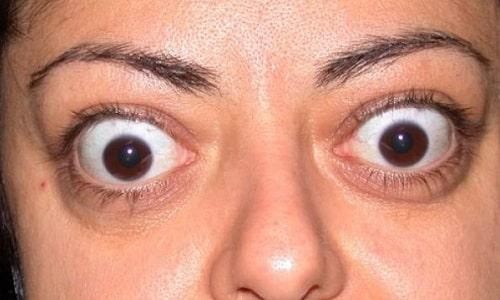 Глазные яблоки у 30% людей с гипертиреозом увеличиваются и выпячиваются, возникает пучеглазие
