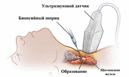 Процесс забора материала проходит под контролем УЗИ. Тонкая игла вводится в центр опухоли, к ней присоединяется шприц для пункции, втягивается необходимый объем биоматериала