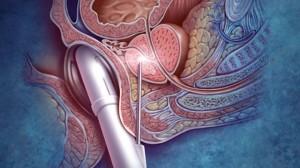 Биопсия аденомы предстательной железы