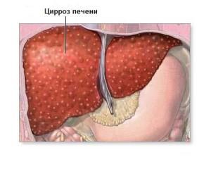 Портальный цирроз печени