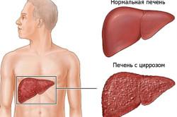 Цирроз печени - причина рвоты с кровью