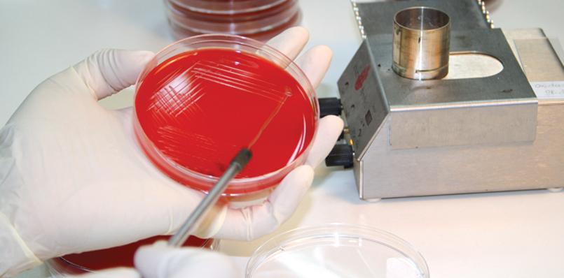 анализ на наличие бактерий