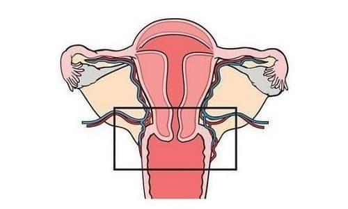 Один из самых частых диагнозов - это дисплазия шейки матки