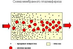 Схема мембранного плазмафереза