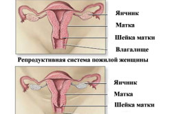 Изменения  при менопаузе
