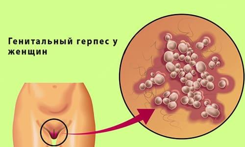 Половой герпес у женщин провоцируется инфицированием ВПГ 1 и 2 типа, протекает с характерной клинической картиной