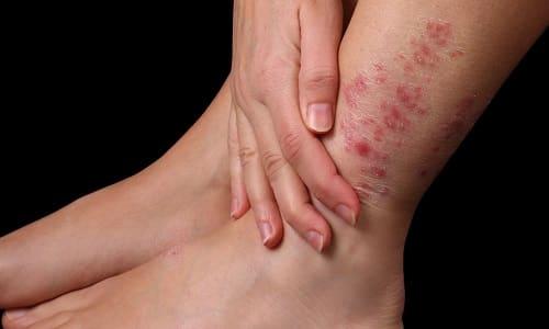 Герпес - вирусная инфекция, поражающая кожные покровы и слизистые оболочки различных участков тела, в т. ч. нижние конечности