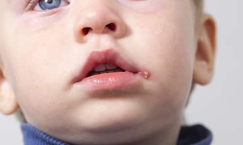 С раннего возраста дети подвержены воздействию вируса герпеса - хронического заболевания с характерной симптоматикой
