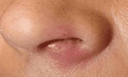 Если вирус проникает в слизистые оболочки носа, при каждом рецидиве сыпь появляется в этой области