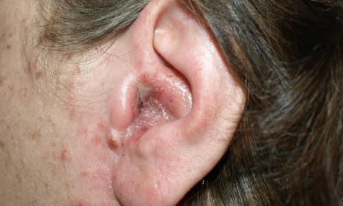Герпес - острое вирусное заболевание, вызываемое вирусом Varicella zoster, вирусом 1-го или 2-го типа, при котором поражаются кожные покровы, слизистые оболочки и нервная система