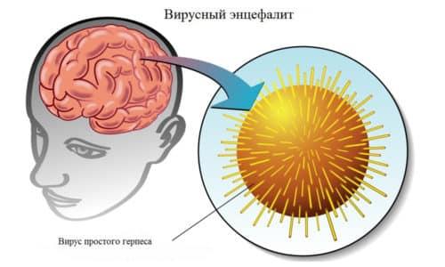 Вирус простого герпеса проявляется простудой на губах (1 тип), но по невыясненным причинам может мигрировать к центральной нервной системе, провоцируя развитие энцефалита