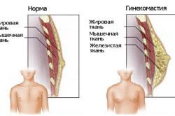 Схема гинекомастии