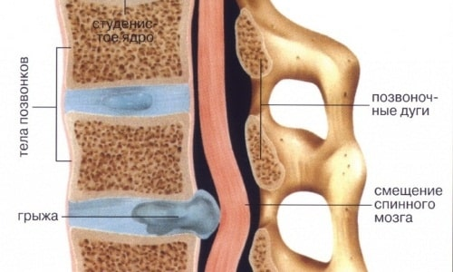 Медиально-парамедианная (парамедиальная). В данном случае образование формируется по срединной линии межпозвонкового диска, секвестрация происходит в области спинномозгового канала