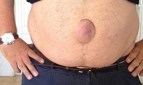 Пупочная грыжа у мужчин характеризуется выпиранием или выпадением внутренних органов брюшной полости в области пупка