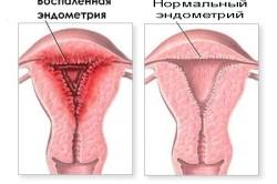 Эндометрит - одна из причин повышения лейкоцитов в мазке