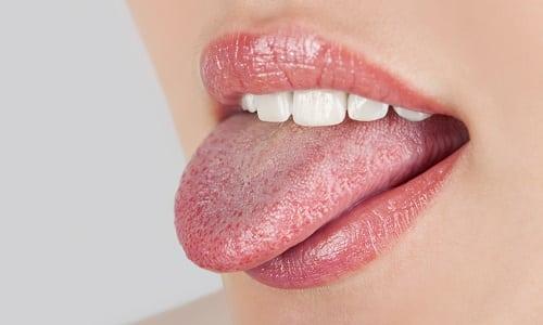 Высыпания на языке - это возможное проявление лабиального герпеса