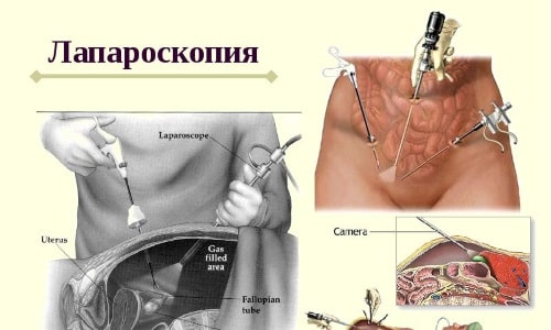 Лапароскопия включает в себя девять этапов