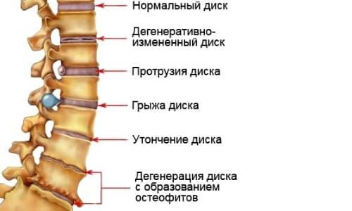 Что такое магнитно-резонансная томография? фото